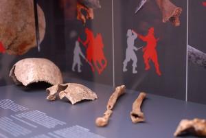 Anhand der Knochen lässt sich mehr bestimmen als nur Verletzungen. Foto: Christian Jöricke